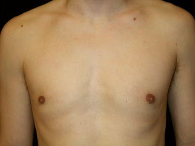 Gynecomastia Gallery - Patient 39246232 - Image 2