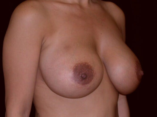 Breast Augmentation Gallery - Patient 39246231 - Image 4