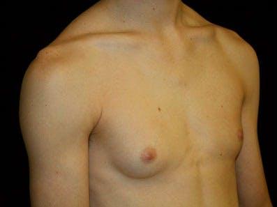 Gynecomastia Gallery - Patient 39246232 - Image 3