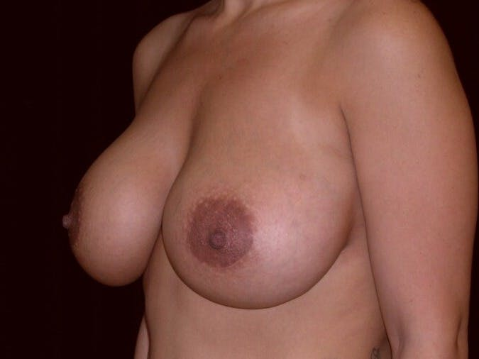 Breast Augmentation Gallery - Patient 39246231 - Image 6
