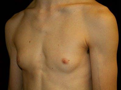 Gynecomastia Gallery - Patient 39246232 - Image 5