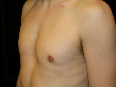 Gynecomastia Gallery - Patient 39246232 - Image 6