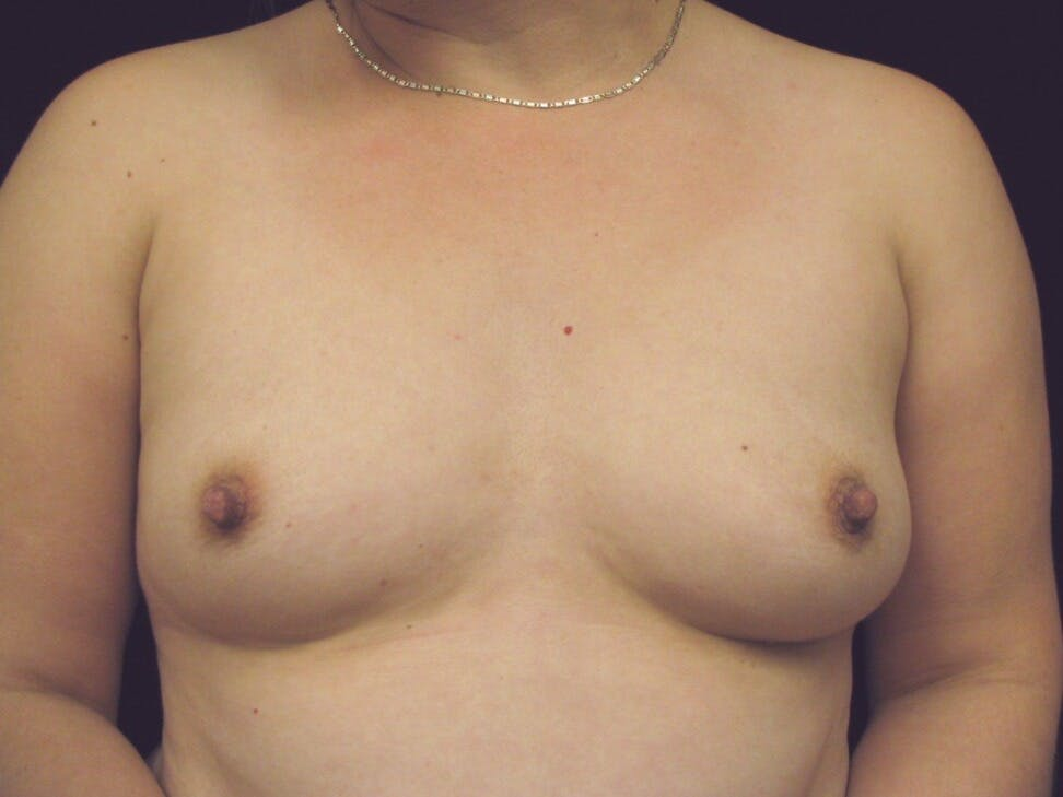 Breast Augmentation Gallery - Patient 39247838 - Image 1