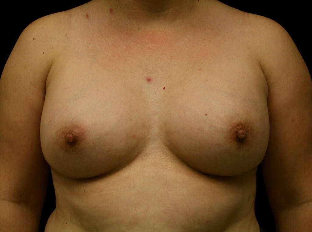Breast Augmentation Gallery - Patient 39247838 - Image 2