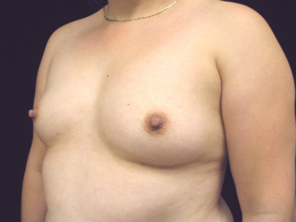 Breast Augmentation Gallery - Patient 39247838 - Image 3