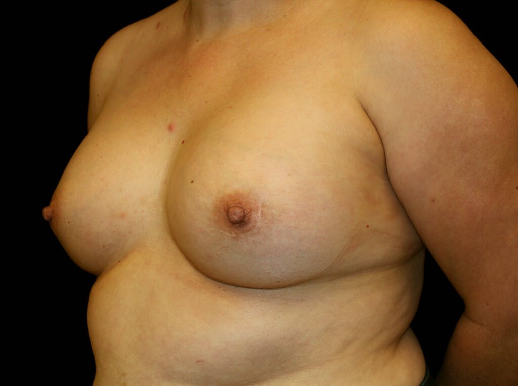 Breast Augmentation Gallery - Patient 39247838 - Image 4