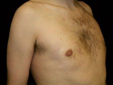 Gynecomastia Gallery - Patient 39247837 - Image 4