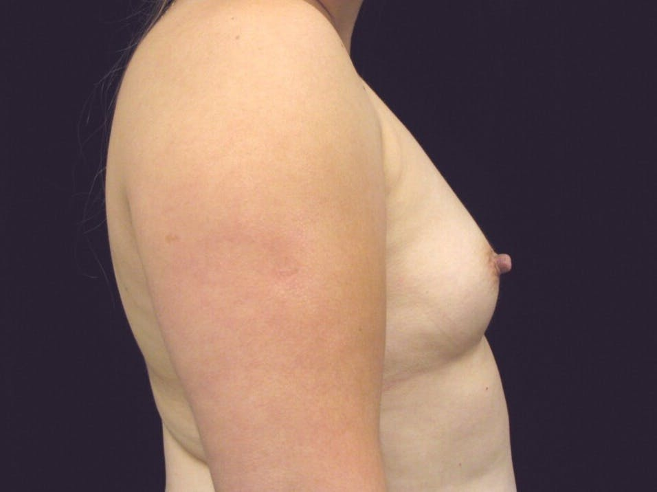 Breast Augmentation Gallery - Patient 39247838 - Image 5