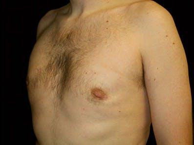 Gynecomastia Gallery - Patient 39247837 - Image 6