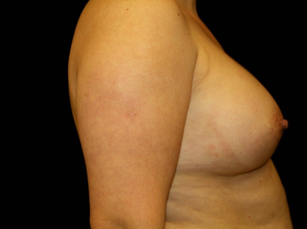 Breast Augmentation Gallery - Patient 39247838 - Image 6
