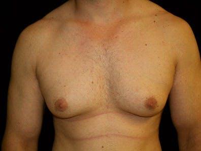 Gynecomastia Gallery - Patient 39247840 - Image 1