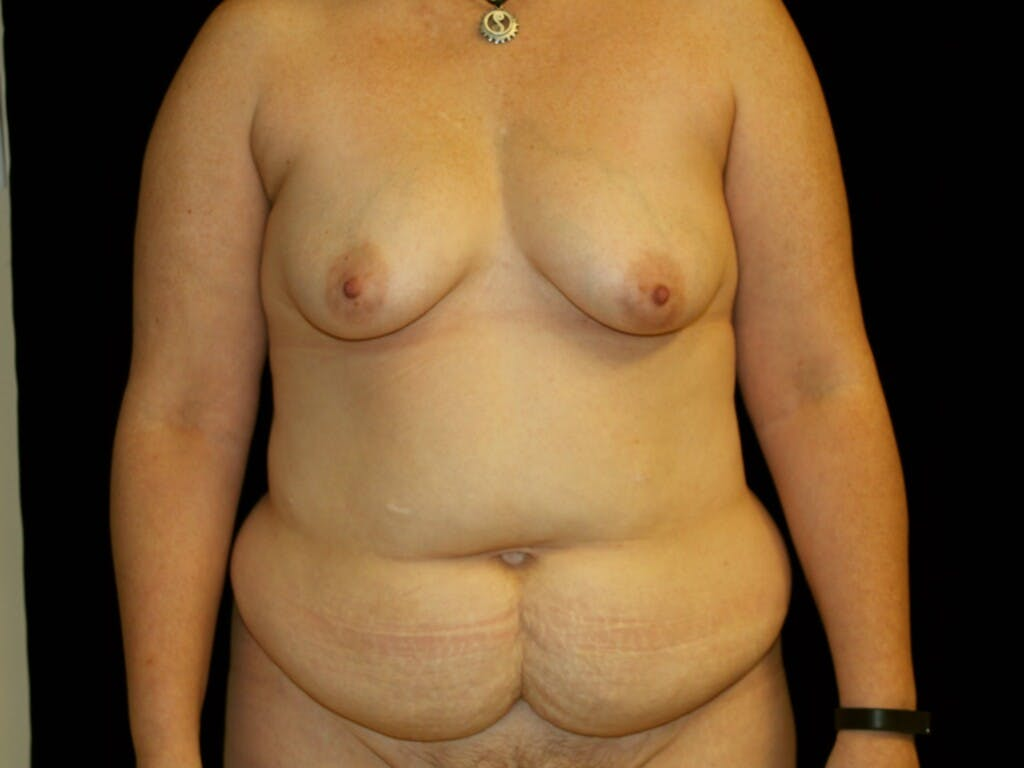 Breast Augmentation Gallery - Patient 39247841 - Image 1