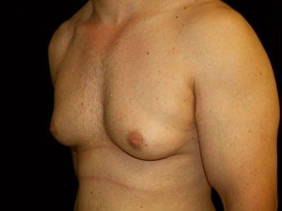 Gynecomastia Gallery - Patient 39247840 - Image 5