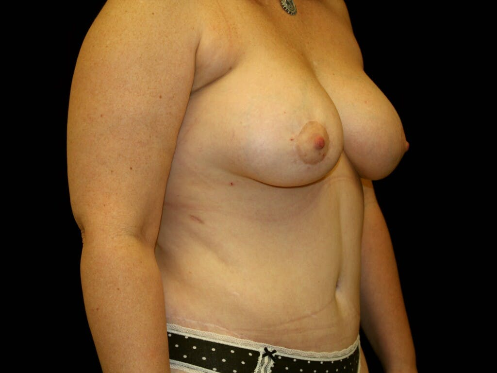 Breast Augmentation Gallery - Patient 39247841 - Image 4