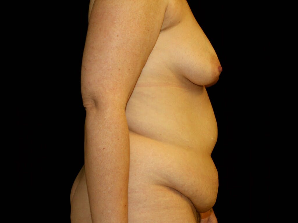 Breast Augmentation Gallery - Patient 39247841 - Image 5