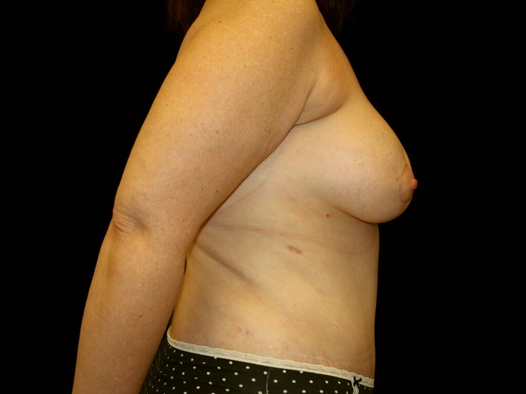 Breast Augmentation Gallery - Patient 39247841 - Image 6