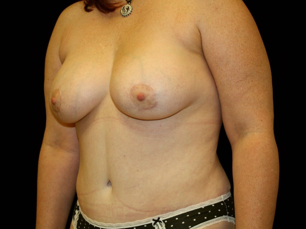 Breast Augmentation Gallery - Patient 39247841 - Image 8