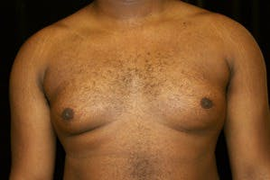 Gynecomastia Gallery - Patient 39247851 - Image 1