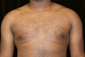 Gynecomastia Gallery - Patient 39247851 - Image 2
