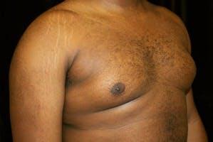 Gynecomastia Gallery - Patient 39247851 - Image 3