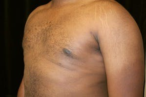 Gynecomastia Gallery - Patient 39247851 - Image 6