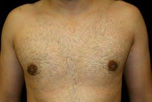 Gynecomastia Gallery - Patient 39247852 - Image 2