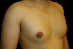 Gynecomastia Gallery - Patient 39247852 - Image 3