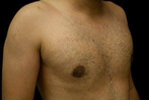 Gynecomastia Gallery - Patient 39247852 - Image 4