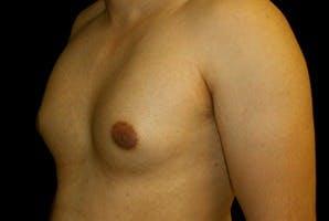 Gynecomastia Gallery - Patient 39247852 - Image 5