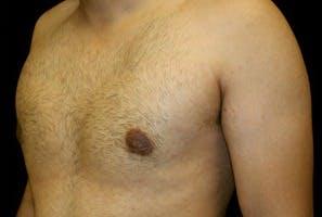 Gynecomastia Gallery - Patient 39247852 - Image 6