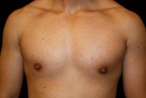 Gynecomastia Gallery - Patient 39247853 - Image 2