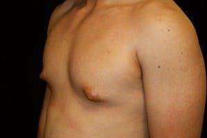 Gynecomastia Gallery - Patient 39247853 - Image 5