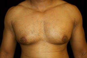 Gynecomastia Gallery - Patient 39247856 - Image 1