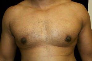 Gynecomastia Gallery - Patient 39247856 - Image 2