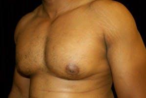 Gynecomastia Gallery - Patient 39247856 - Image 5