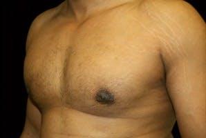 Gynecomastia Gallery - Patient 39247856 - Image 6