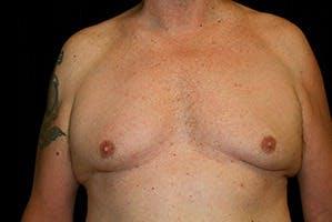 Gynecomastia Gallery - Patient 39247857 - Image 1