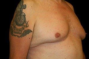 Gynecomastia Gallery - Patient 39247857 - Image 3
