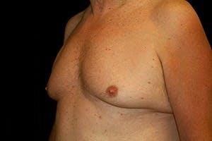 Gynecomastia Gallery - Patient 39247857 - Image 5
