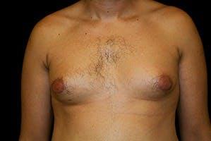 Gynecomastia Gallery - Patient 39247860 - Image 1