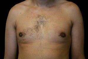 Gynecomastia Gallery - Patient 39247860 - Image 2