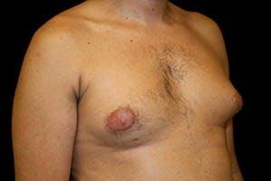 Gynecomastia Gallery - Patient 39247860 - Image 3