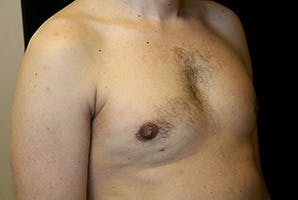 Gynecomastia Gallery - Patient 39247860 - Image 4