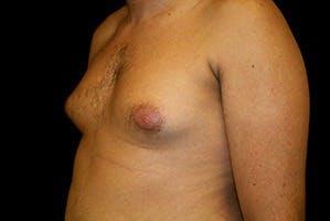 Gynecomastia Gallery - Patient 39247860 - Image 5