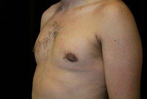 Gynecomastia Gallery - Patient 39247860 - Image 6