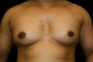 Gynecomastia Gallery - Patient 39247862 - Image 1