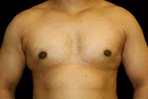 Gynecomastia Gallery - Patient 39247862 - Image 2