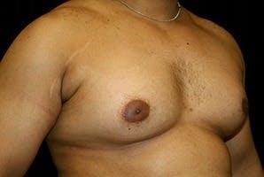 Gynecomastia Gallery - Patient 39247862 - Image 3