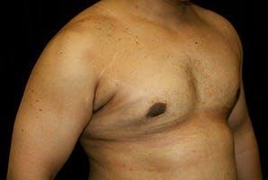 Gynecomastia Gallery - Patient 39247862 - Image 4