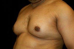Gynecomastia Gallery - Patient 39247862 - Image 5